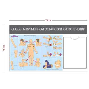 Стенд «Способы временной остановки кровотечений» (1 карман А4 + 1 плакат)